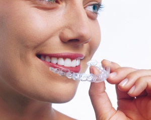 Get your teeth straightened with Invisalign