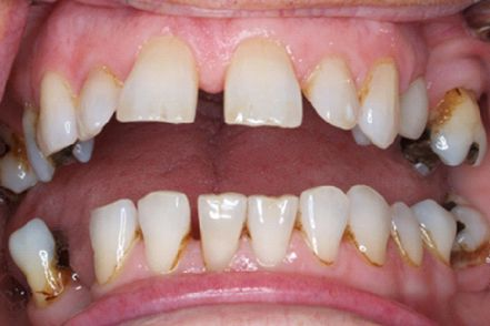 Before - Gaps between teeth