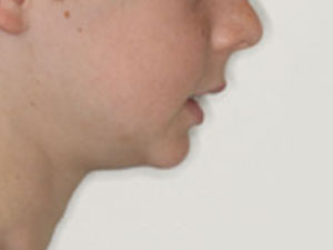 weak chin due to incorrect resting tongue position