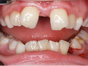 gaps between teeth due to incorrect resting tongue position
