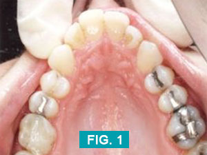 teeth before upperarch treatment